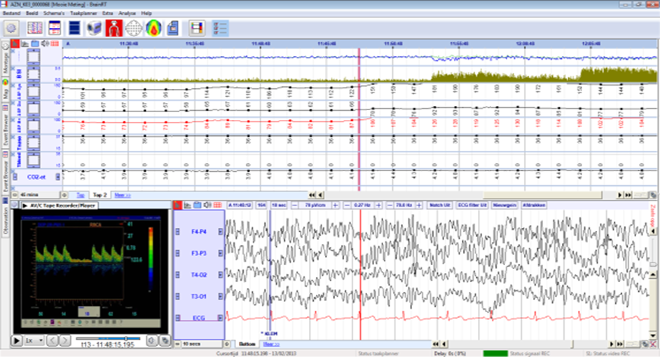 Example of EEG monitoring during carotid endarterectomy, with real time calculation of the Brain Symmetry Index and acquisition of EEG and other vital signals. Data from the Transcranial Doppler are included as well, by linking the analog output of the TCD device to the video input of the BrainRT™ acquisition station